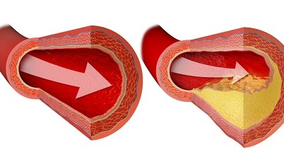 Do You Have a Cholesterol Issue?